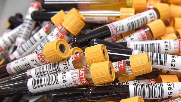 Пробирки с кровью для теста на антитела к COVID-19 - Sputnik Армения