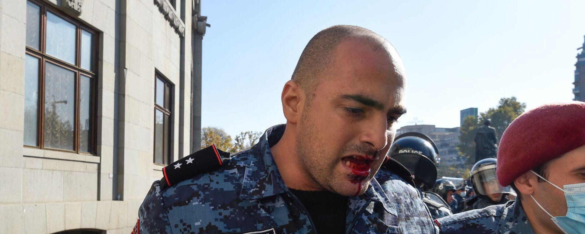 Раненный полицейский на площади Свободы (11 ноября 2020). Еревaн - Sputnik Армения, 1920, 11.11.2020