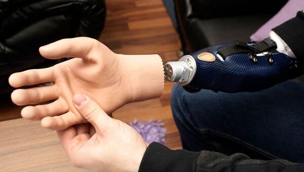 Австрийский пациент показывает свою бионическую руку (24 февраля 2015). Вена - Sputnik Армения