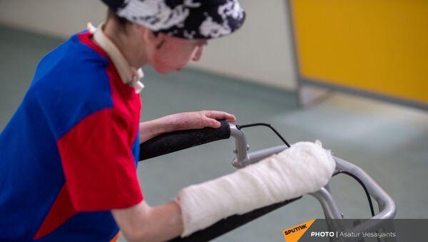 8-летний Ваге Мосинян, получивший 80% ожогов в дорожно-транспортном происшествии, выписывается из больницы через год - Sputnik Армения