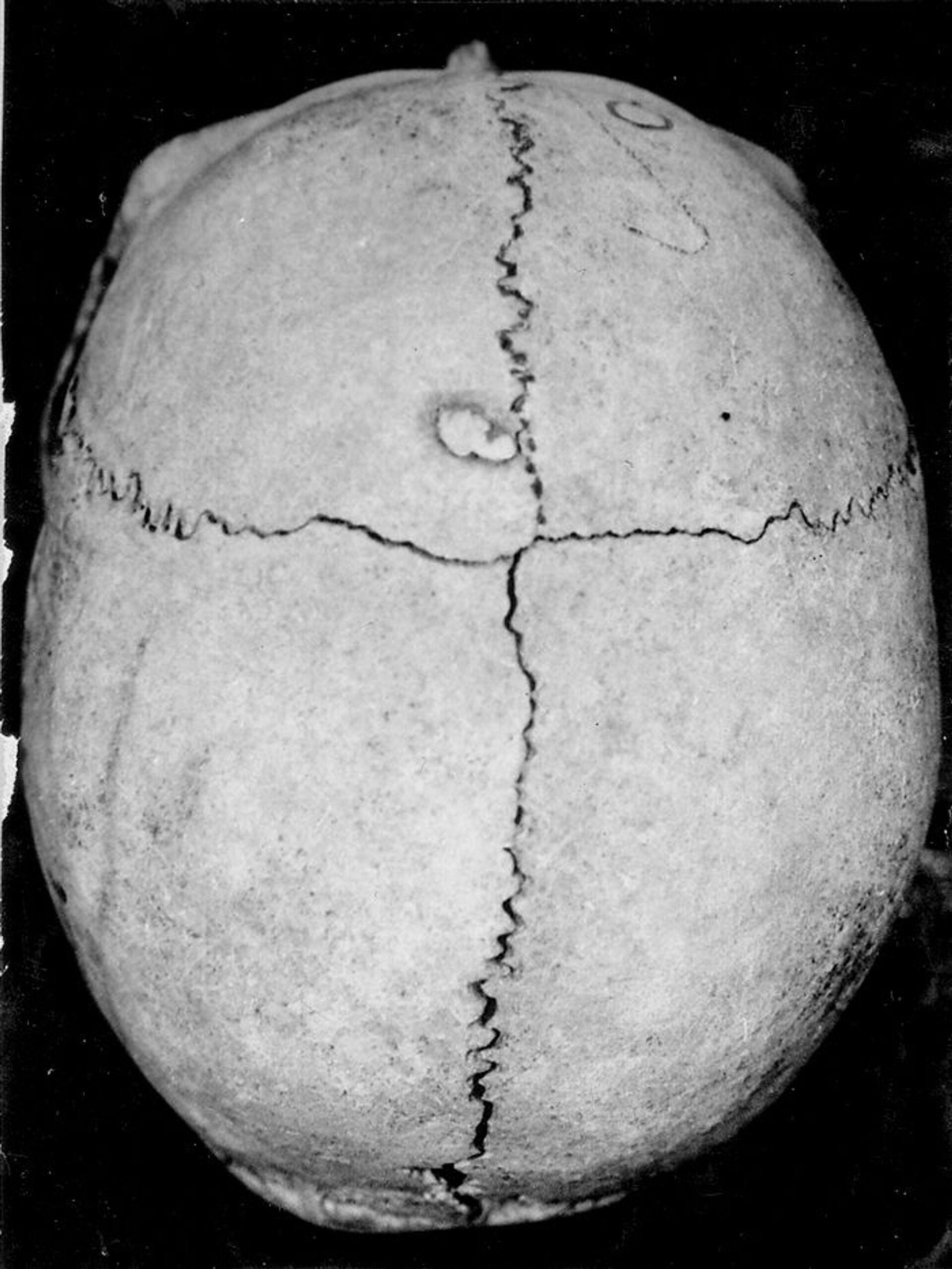 Как выглядели наши далекие предки, и как они делали трепанацию черепа - находки в Лчашене - Sputnik Армения, 1920, 09.05.2021