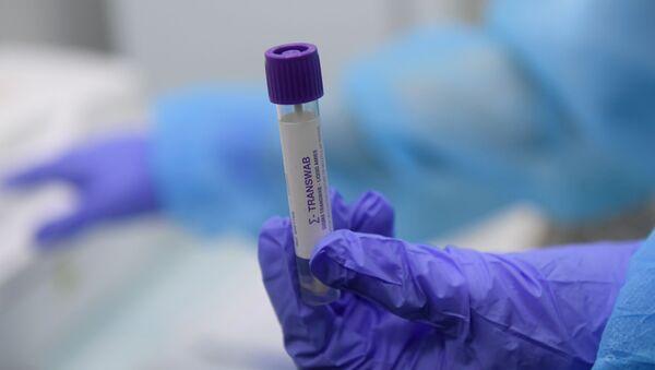Пробирка с тестом на коронавирус  в медицинской лаборатории - Sputnik Армения