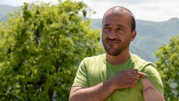 Встретивший леопарда в лесах близ села Енокаван Арман Габриелян показывает шрам на предплечье - Sputnik Армения