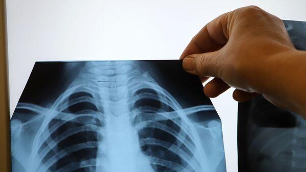 Врач с рентгеном легких в инфекционном корпусе, где лечат пациентов с COVID-19 - Sputnik Армения